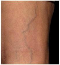 Ретикулярний варикоз (ретикулярні вени)
